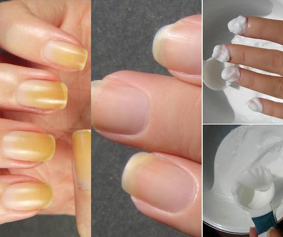 cómo blanquear las uñas